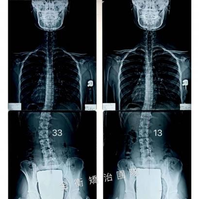 許紓嫚X光對比.jpg